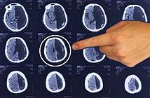 """Người đàn ông sống 60 năm mà chỉ có """"một nửa"""" bộ não"""