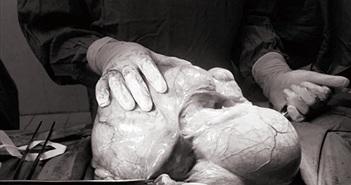 Người phụ nữ mang khối u hơn 6kg trong bụng nhưng không hay biết