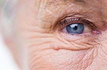 Thử nghiệm lâm sàng thuốc chống lão hóa