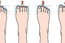 Đọc vị tính cách từ hình dáng bàn chân