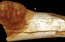 Phát hiện hóa thạch cho thấy ung thư đã có từ thời tiền sử