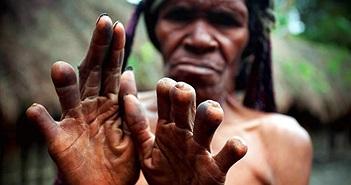Rùng rợn nơi một người thân chết đi, chặt một ngón tay
