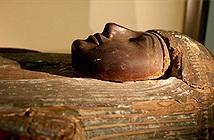 Người cổ đại cũng mắc bệnh xơ vữa động mạch