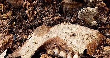 Phát hiện cả nghìn răng người giấu trong bức tường nhà ở Mỹ